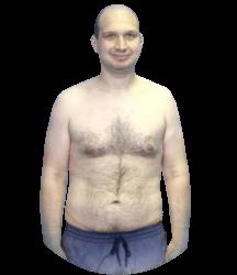 andrei-posle-procedury-bg