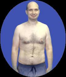 Andrei posle procedury